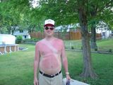 Kunstvoller Sonnenbrand
